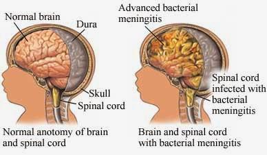 Obat Herbal Meningitis Pada Anak