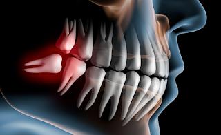 Como lidar com Dentes Inclusos?