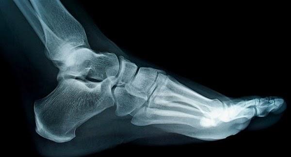 As mãos e pés têm mais de metade dos ossos do corpo