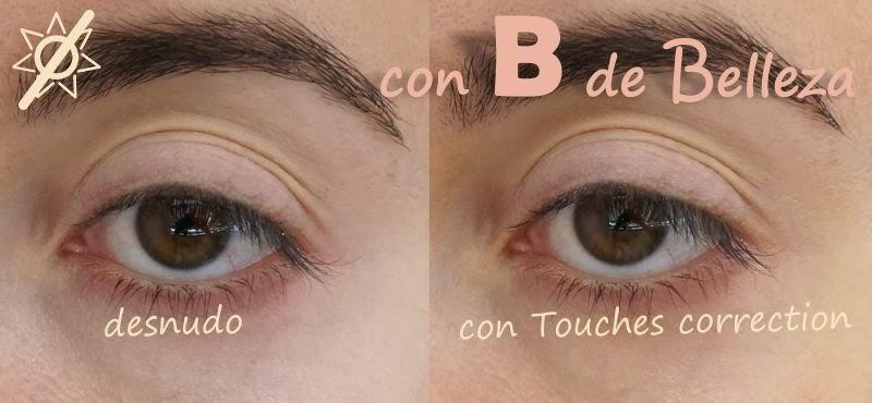 Comparación ojo desnudo y después