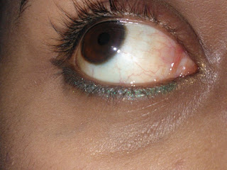 A simple EOTD. image