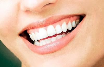 Merawat Gigi dan Mulut Sehat