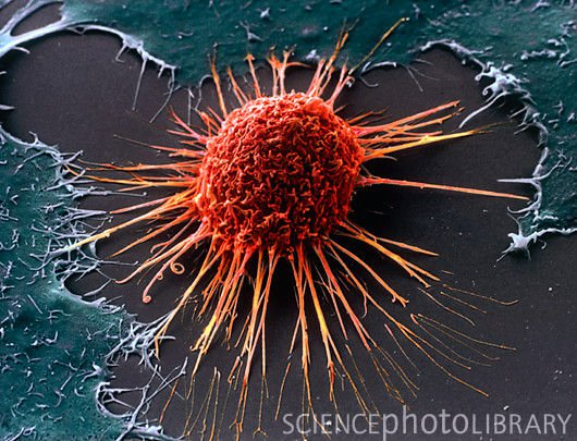 Cancer cells under electron microscope
