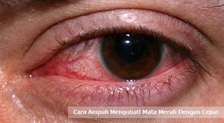 Cara Ampuh Mengobati Mata Merah Dengan Cepat Cara Ampuh Mengobati Mata Merah Dengan Cepat