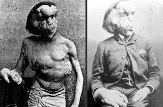 manusia, manusia aneh, manusia paling aneh, Manusia Gajah, wanita berjanggut, manusia burung hantu, manusia kaki empat