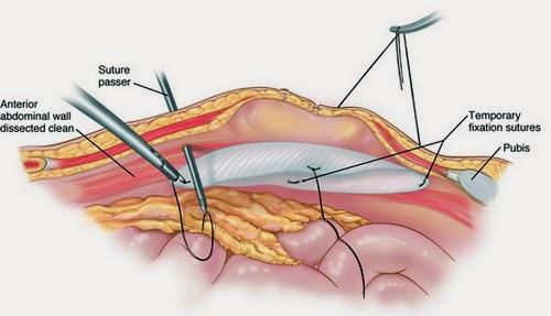 Hernia-surgery-pictures