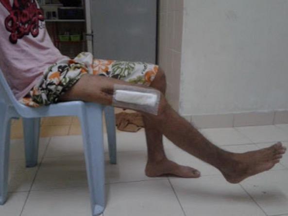 Dianggap Mat Rempit Kerana Kemalangan Motosikal, Pihak Hospital Cuai Tinggalkan 'Barang Misteri' Dalam Luka