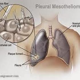 Pleural Mesothelioma 2015