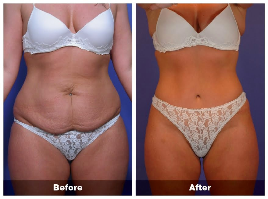 Abdominoplasty Weight Loss Tummy Tuck Weight Loss Terms Online