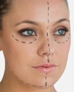 căng da mặt bằng phương pháp nội soi