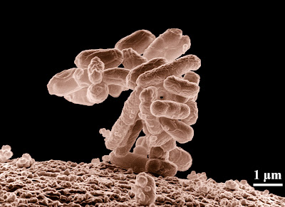 Fecal bacteria picture.