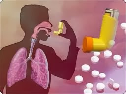 Effective Methods for Asthma Treatment