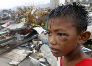 a boy with a bruised eye in the aftermath of Yolanda