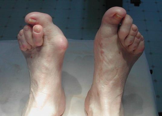 От чего растет косточка на ноге и как ее лечить