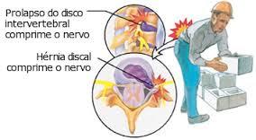 Dores Lombares são sinais de Alerta de problemas na coluna - Clínica de Massoterapia em São José SC