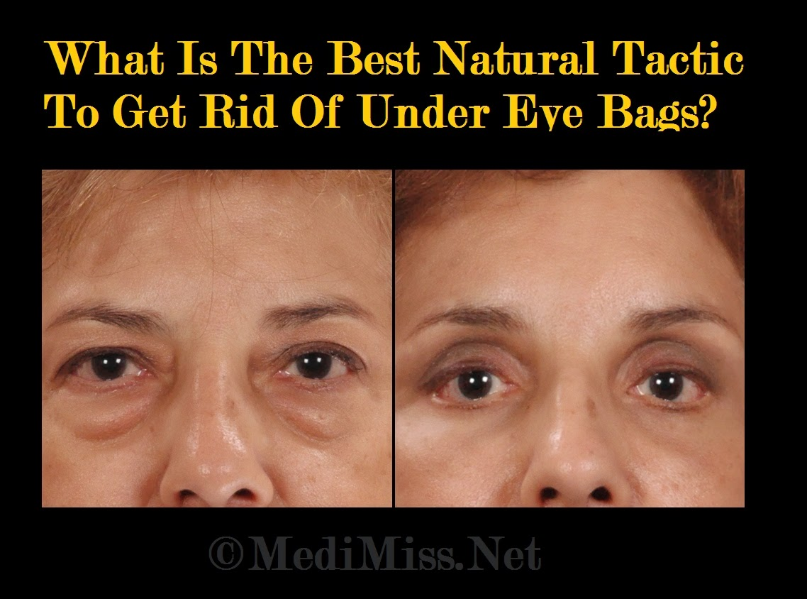 Best Natural Way To Get Rid Of Bags Under Eyes