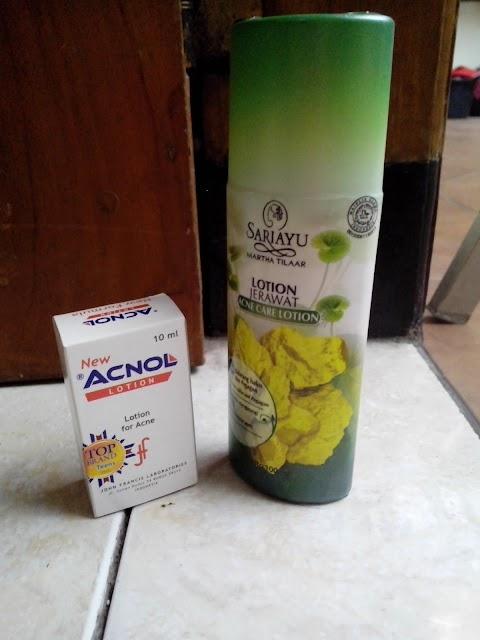 [REVIEW] Acnol Lotion VS. Sariayu Lotion Jerawat