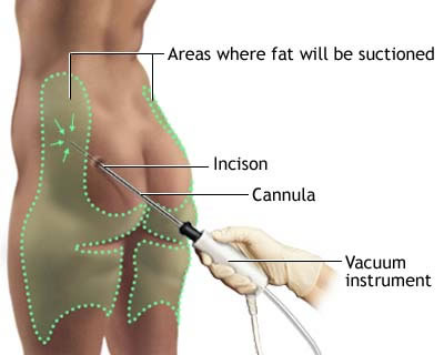Liposuction Procedure