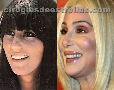 antes y despues de cher