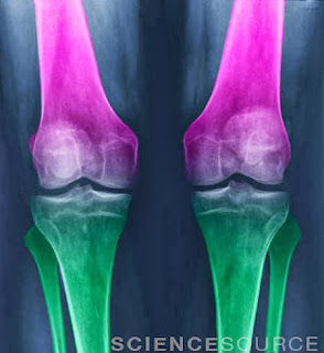Osteoarthritis of the Knees - Stock Image BN8865