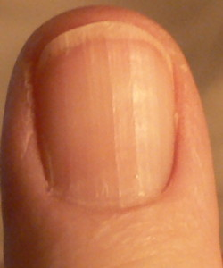 Bumps below thumb nail