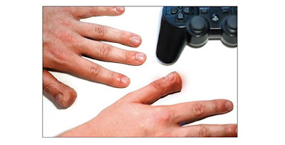 Inilah bahaya maen PS terlalu sering,jarinya bengkok,ne fotonya dari asiktau.blogspot.com