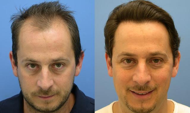 hair-transplant-techniques