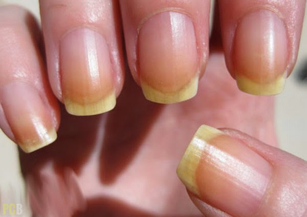 Beautiful Women: Health and Beauty Tip -- Discolored Nails