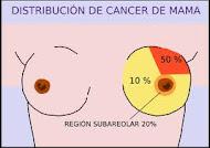 Distribución de cáncer de mama