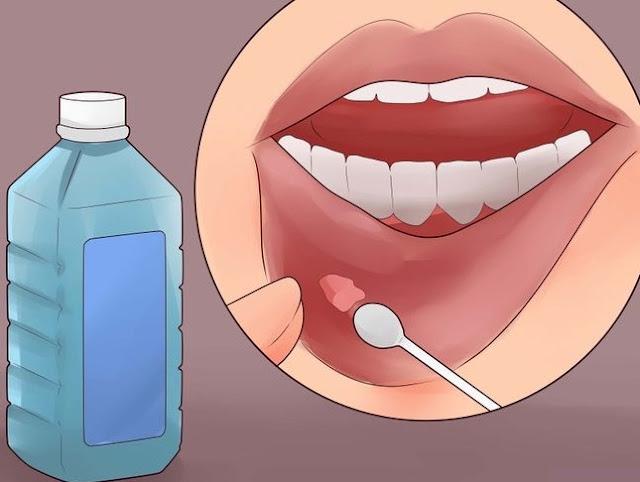 les causes des aphtes dans la bouche soins dentaires