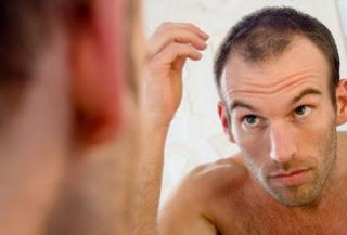 Penyebab Rambut Rontok Pada Pria dan Wanita