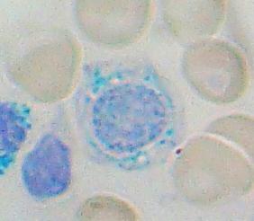 Gejala Anemia Sideroblastik, Penyebab Dan Pencegahannya