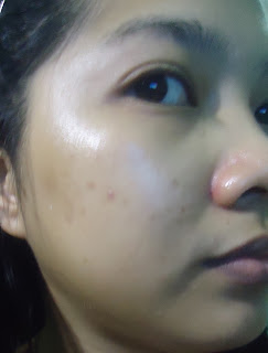 Shiseido White Lucent Skin Challenge Day5