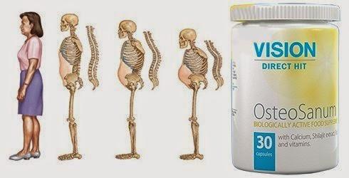 Thực phẩm chức năng OsteoSanum Vision xương răng chắc khỏe