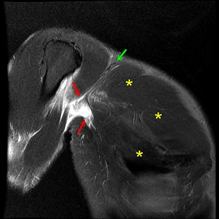 musculoskeletal and orthopedic mri: august 2011, Cephalic Vein