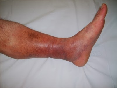 La inflamación varicosa esto
