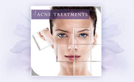 Acne Treatment
