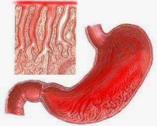 Obat Tradisional Gastritis