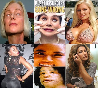 Worst Plastic Surgery Disasters