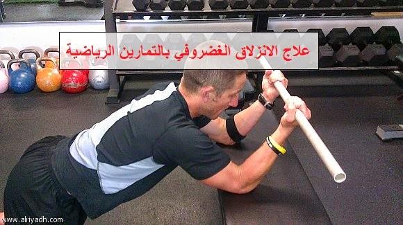 علاج الانزلاق الغضروفي بالتمارين الرياضية