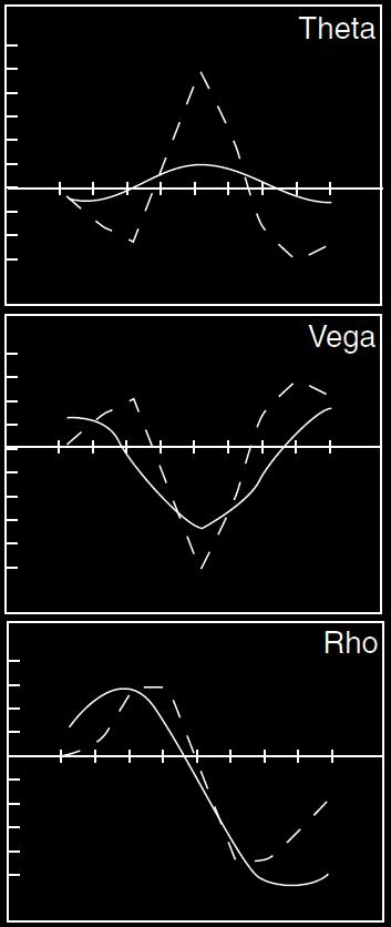 Options trading rho