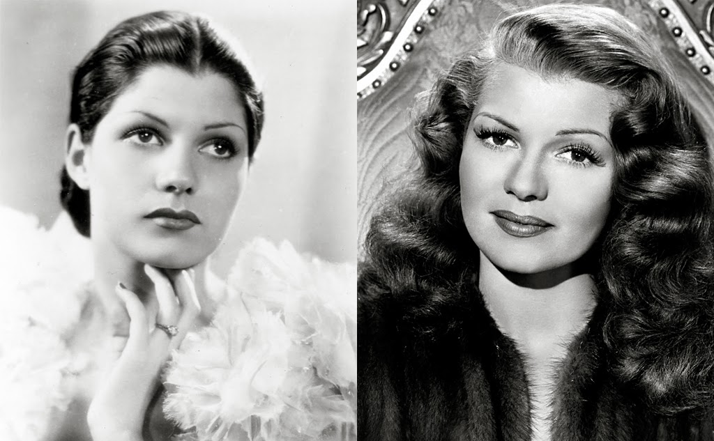 Rita Hayworth Hairline Before After Rita hayworth, the red-headed