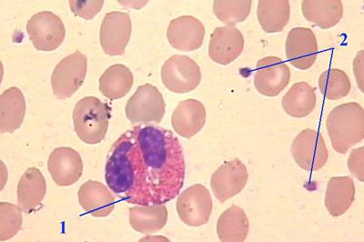 Quanto custa um exame de hemograma completo
