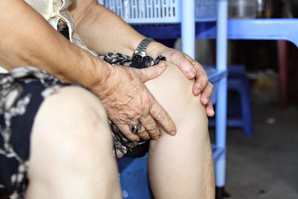 Đau khớp gối là triệu chứng đặc trưng của viêm khớp dạng thấp