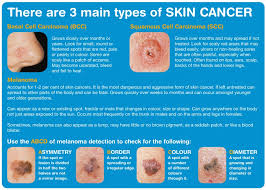 Skin Whitening Reviews: Skin Cancer
