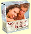 <b>MOLES, Warts & Skin Tags REMOVAL</b>
