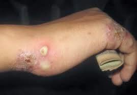 obat antibiotik kudis
