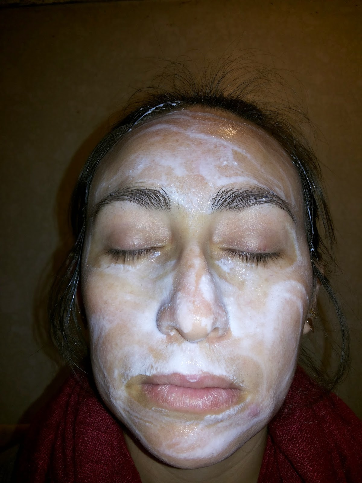 El permanganato del acné