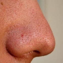 Como remover os pontos negros do nariz
