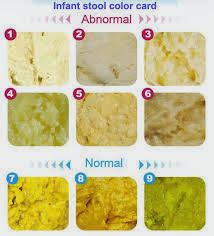 It gives poo (bowel motions stools) its normal brown colour. Pale white or light beige-coloured poo is one sign of a complete blockage or lack of ...  sc 1 st  Laban ni Aloysius - blogger & Laban ni Aloysius: Diagnosis.... islam-shia.org